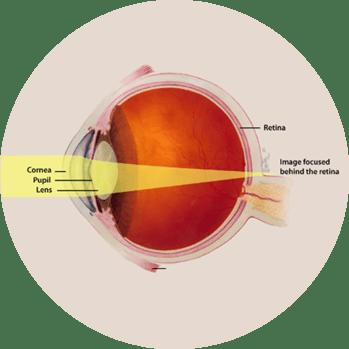 Presbyopia Round.png