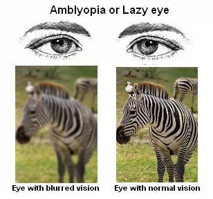 amblyopia