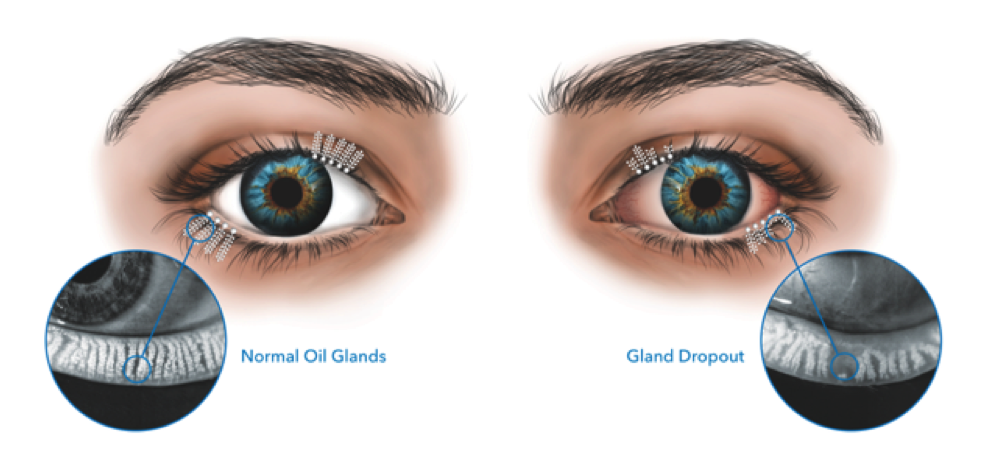 Treat the Root Cause of Evaporative Dry Eye